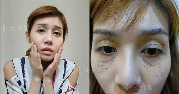 自體脂肪移植補臉